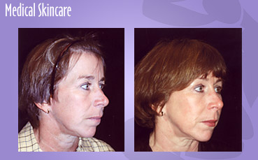 Medical Skincare
