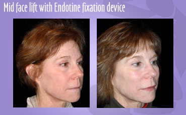Mid face lift with Endotine fixation device by Seattle Plastic Surgeon
