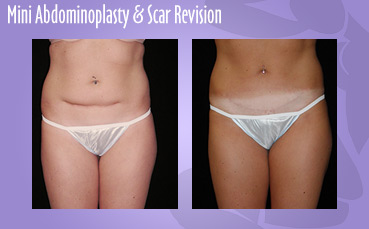 Mini Abdominoplasty + Scar Revision