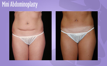 Mini Abdominoplasty and Scar Revision