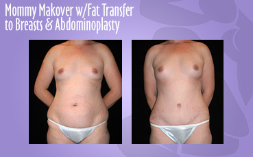 Mommy Makeover Fat Transfer + Abdominoplasty