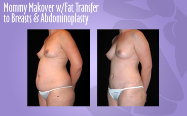 Mommy Makeover Fat Transfer