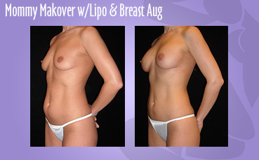 Mommy Makeover Lipo Breast Aug