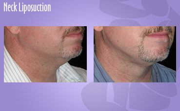 Neck Liposuction