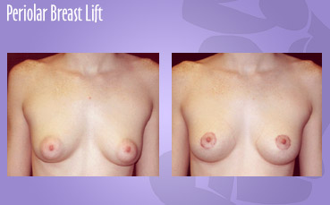Periolar Breast Lift