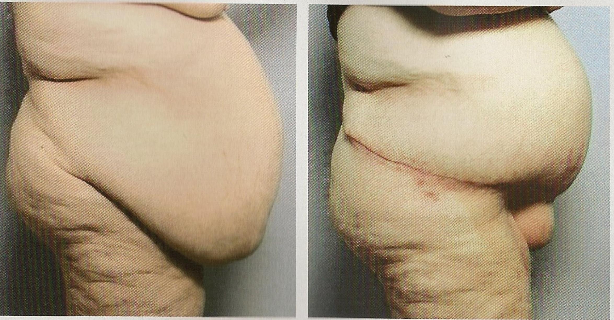 Fat Mons Pubis Surgery