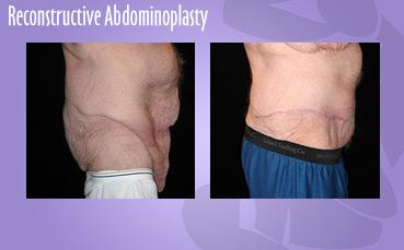 Reconstructive Abdominoplasty