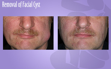 Removal of Facial Cyst