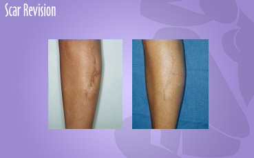 23 year old woman with an unsightly scar on her leg secondary to a car accident. She underwent a scar revision with improved appearance of her leg.