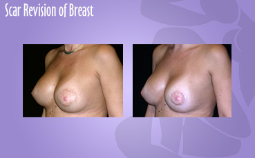 Scar Revision of Breast
