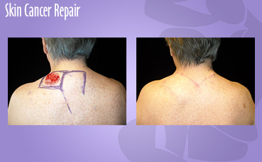 Skin Cancer Repair