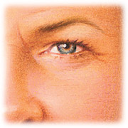 Skin Rejuvenation eyes with filler, chemical peel and Botox