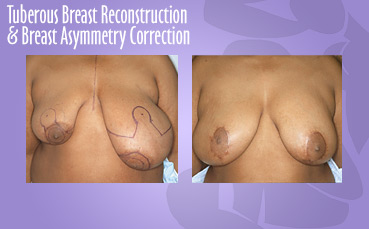 Tuberous Breast Reconstruction