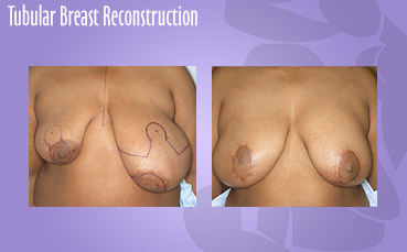Tubular breast reconstruction