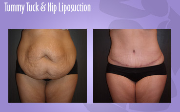 Abdominoplasty, Hip liposuction