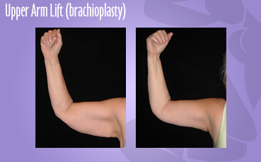 Upper Arm Lift (brachioplasty)