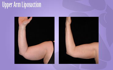 Upper Arm Liposuction