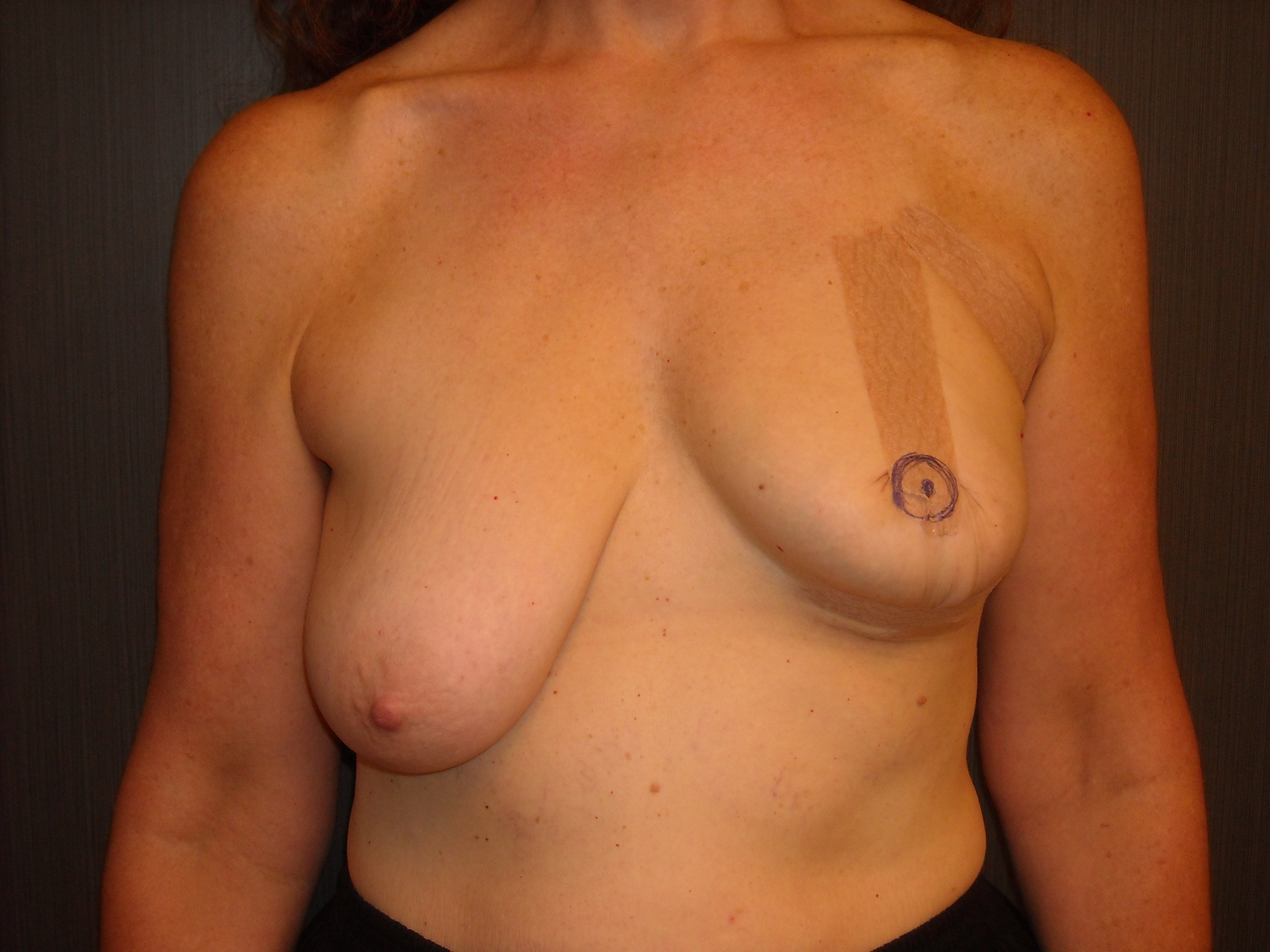 Non surgical boob lift
