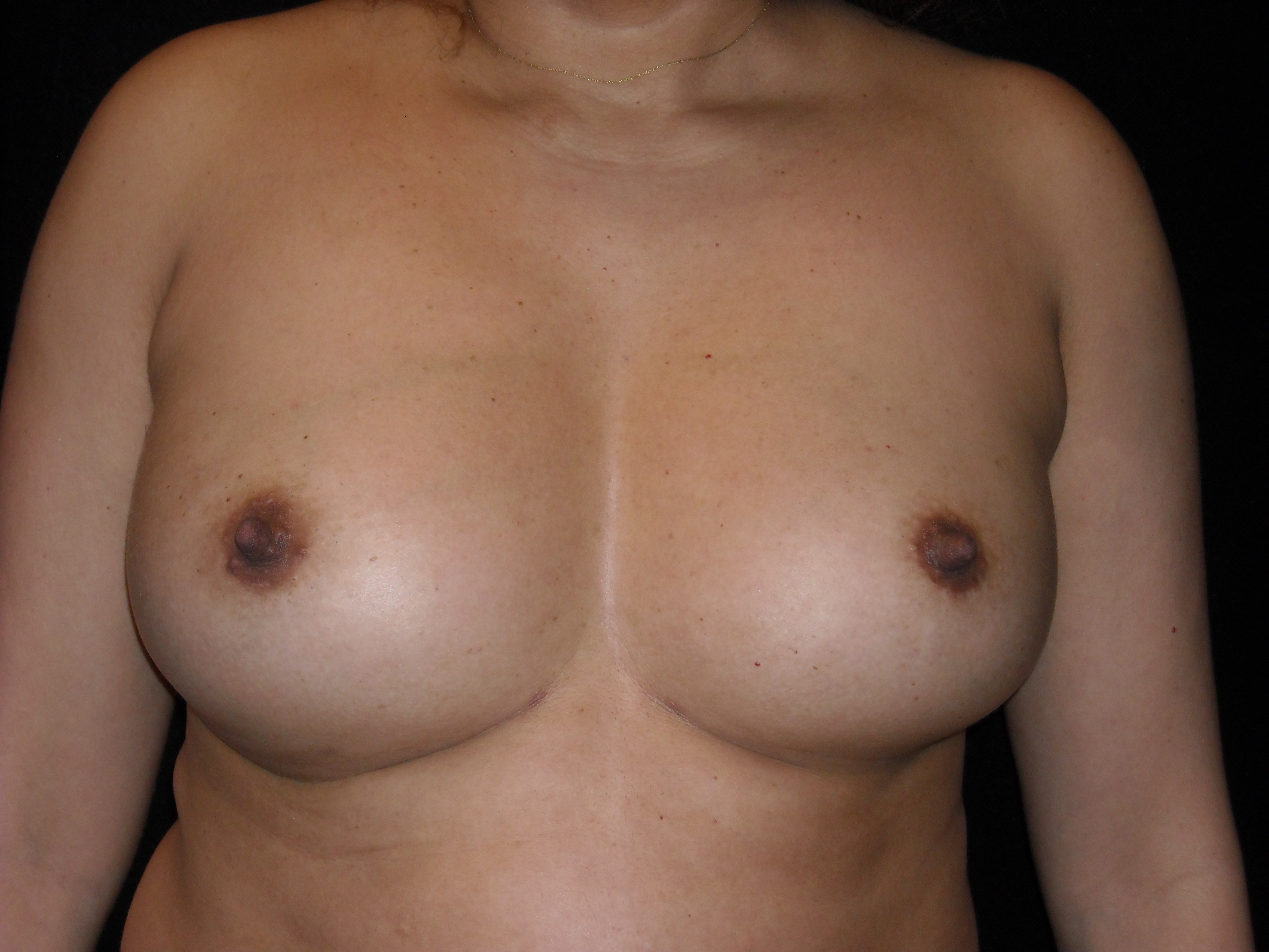 fat breast pictures