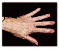 Fat transfer a.k.a. lipostructure to the hand by Seattle plastic surgeon