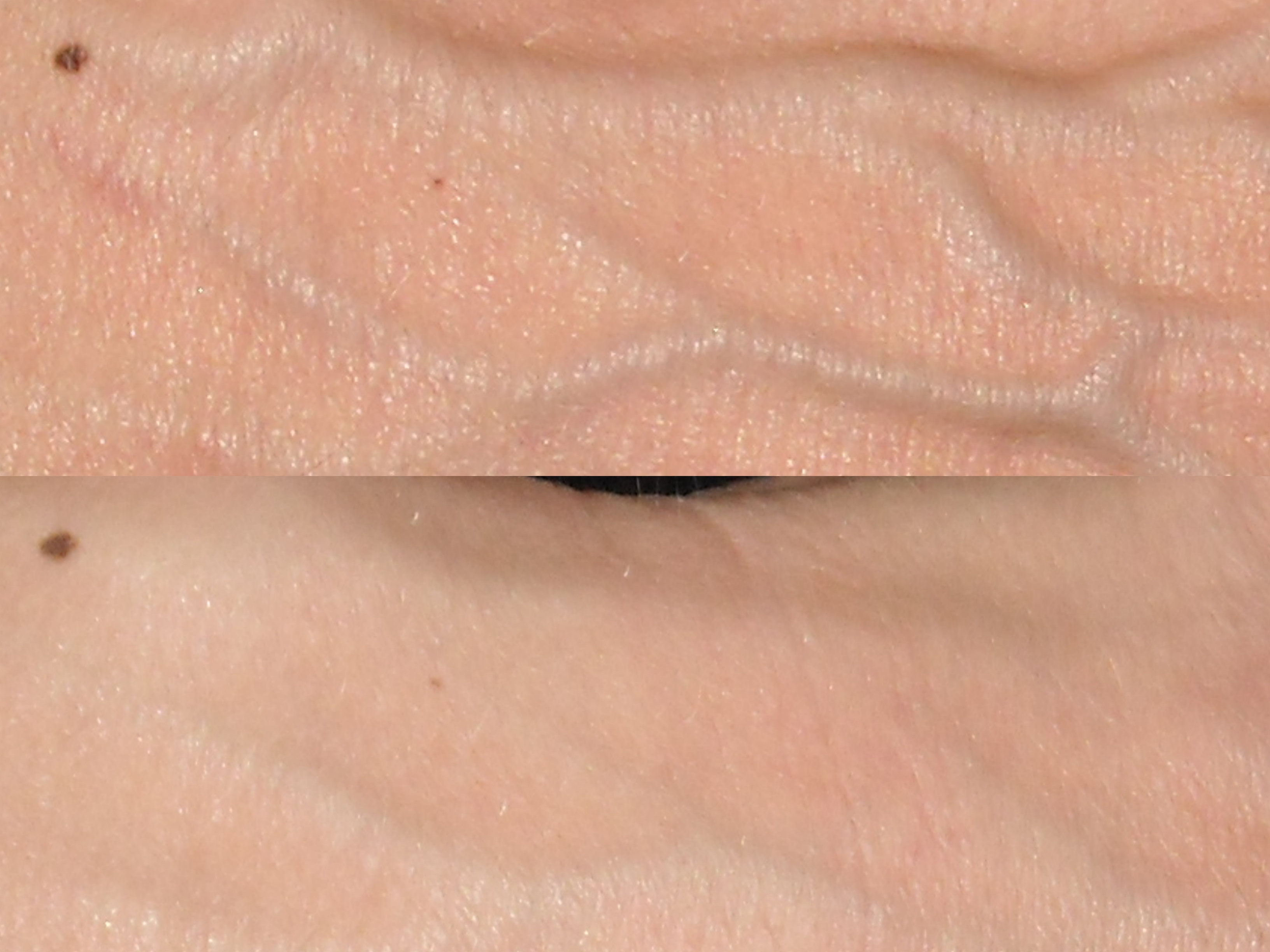 Top shows the back of the hand before fat transfer. Bottom shows the
