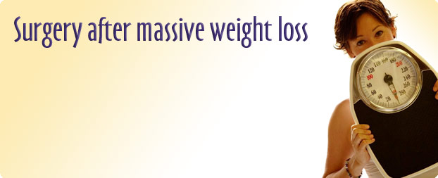 surgery-after-massive-weight-loss
